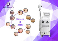 Wrinkle Removal Skin Tightening Pigment Therapy RF Elight IPL Laser Beauty Equipment US002