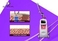 Cina Painless ND YAG Laser Tattoo Removal Machine 1064nm / 532nm Panjang gelombang pabrik